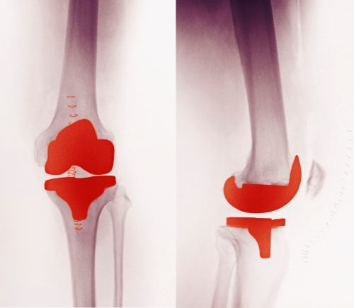 Knee Replacement Or Stem Cells Which Would You Prefer