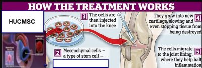 stem cell injections jax fl